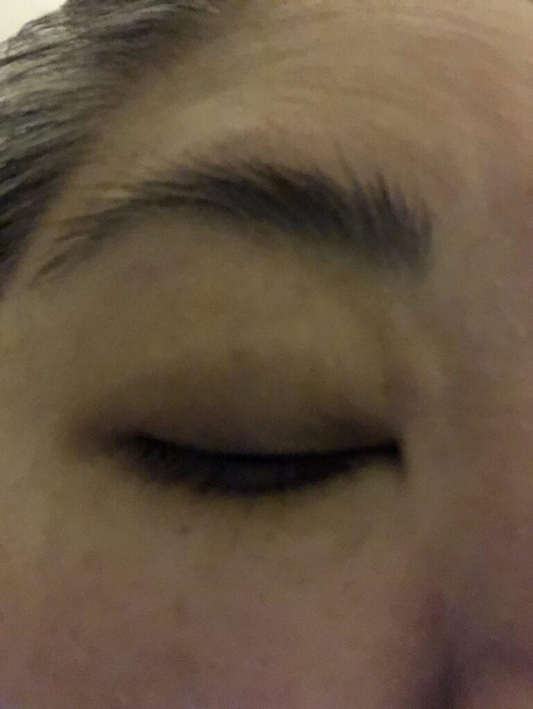 Bug Bite Near My Eye